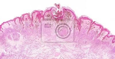 Malignant Melanoma Microscope Picture