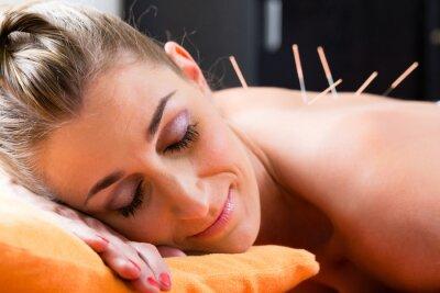 Wall mural Frau bei Akupunktur mit Nadeln im Rücken