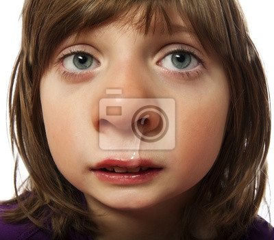 runny nose  - cold - ill little girl - funny concept