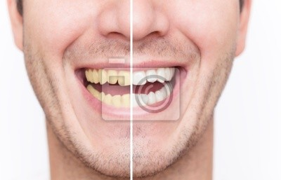 dental cleaning before after